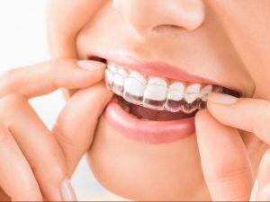 Kieferorthopädie für Erwachsene - Zahnfehlstellungen sanft und komfortabel korrigieren