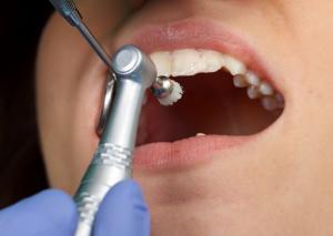 Professionelle Zahnreinigung und Prophylaxe