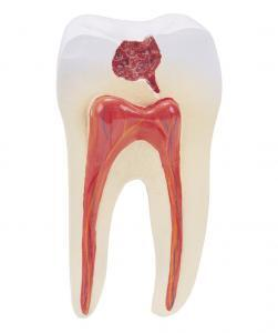 Wurzelbehandlung (Endodontie)